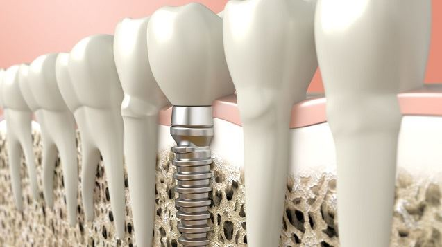 Dental Implants Santa Clarita